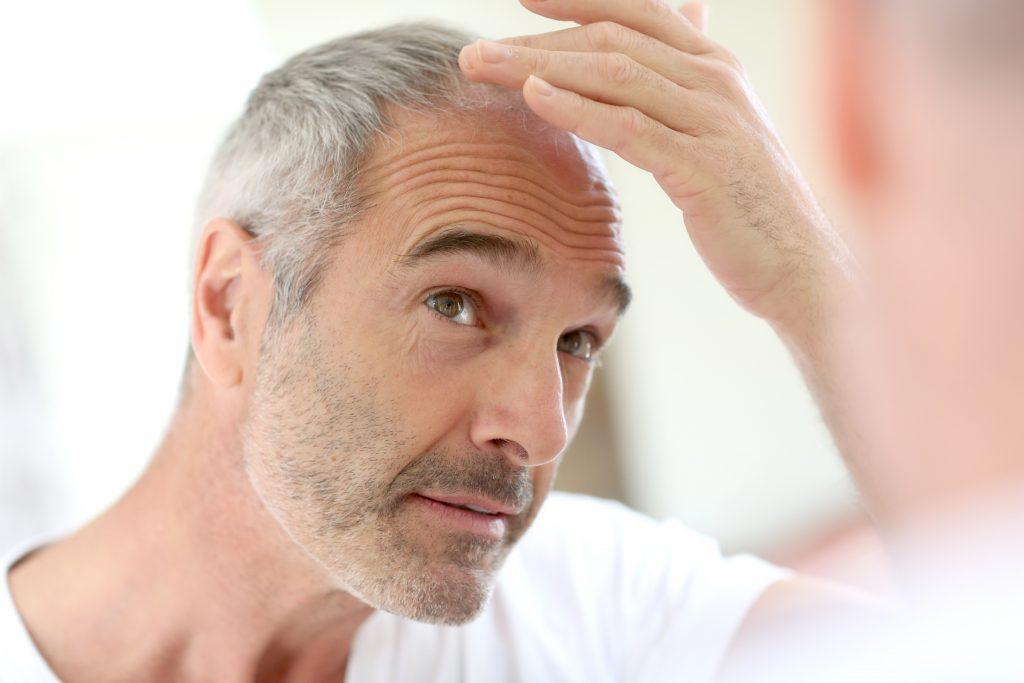 Combate la alopecia con Hairfiller
