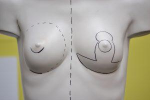 El top de las cirugías de pecho