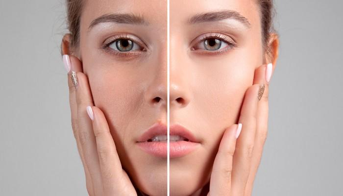 Peeling para mejorar tu piel