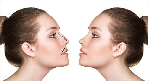 La punta de la nariz